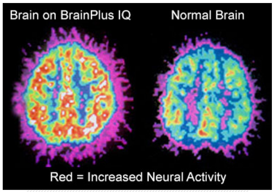 normal vs brain plus iq