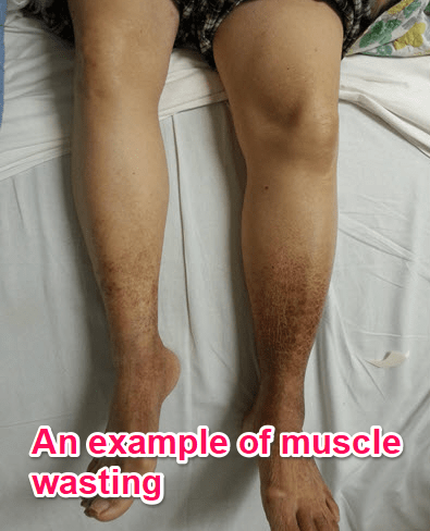 an example of muscle wasting